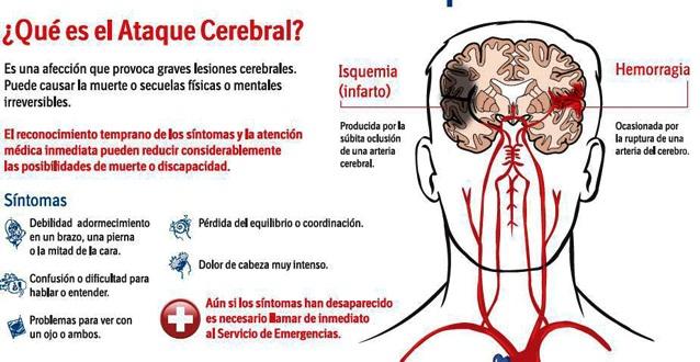 Resultado de imagen para infarto cerebral